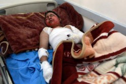 UN must support end to Yemen violence, 519 dead in 2 weeks